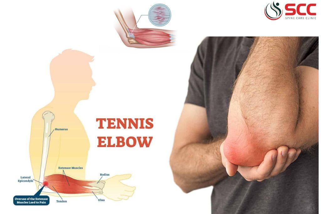 đau khuỷu tay tennis