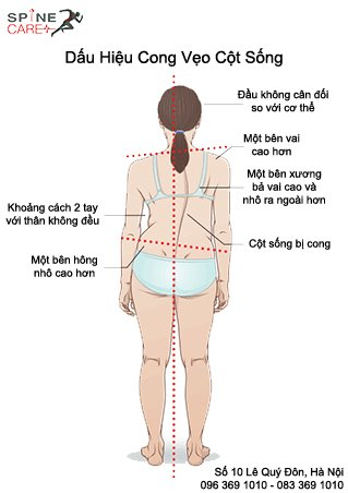 cong vẹo cột sống