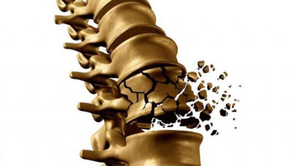 bệnh loãng xương scc