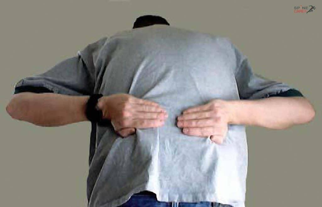 điểm kích hoạt của cơ dưới gai