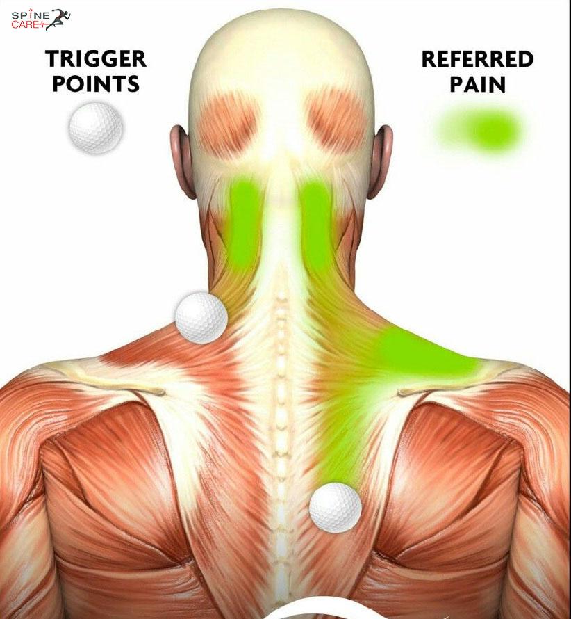 đau xơ cơ vùng cổ