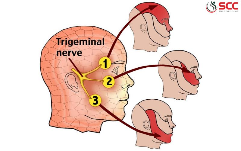 đau dây thần kinh sinh ba