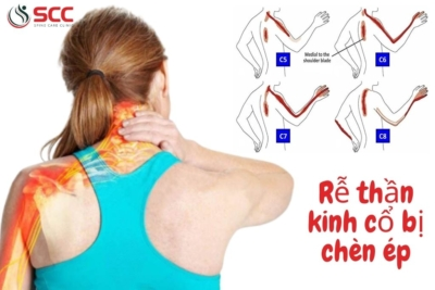 Nguyên nhân, cách chữa đau đầu & đau nửa đầu