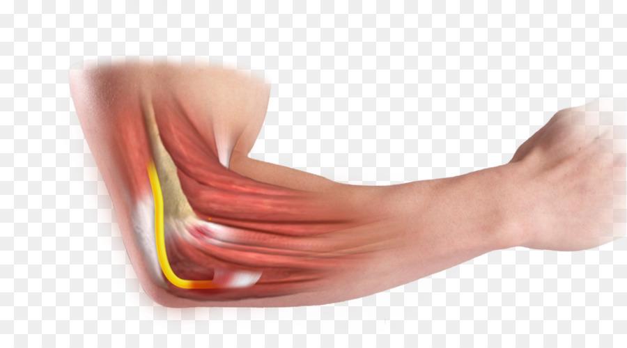 thần kinh trụ khuỷu tay