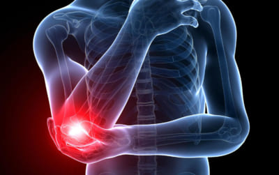 Sự khác nhau giữa bong gân và căng cơ
