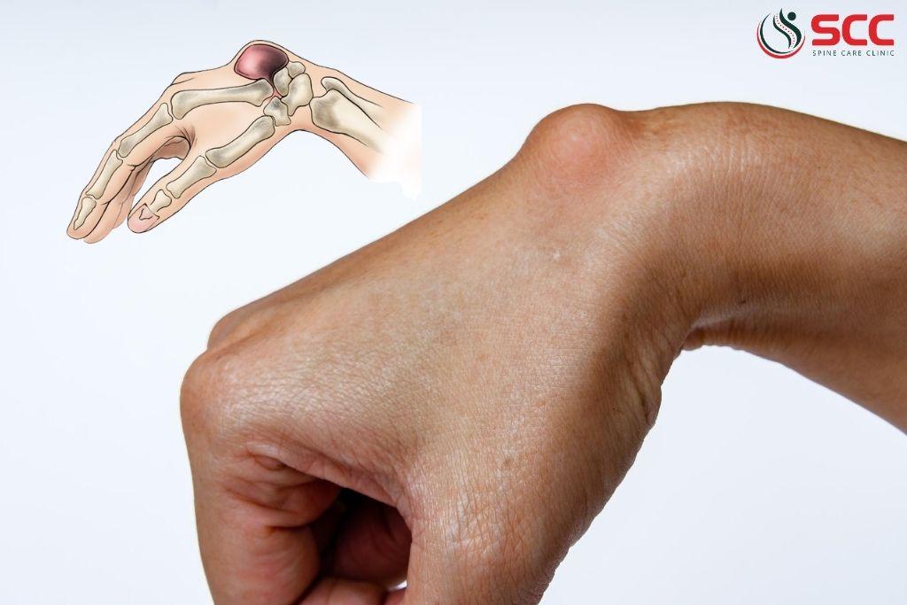 u nang hoạt dịch cổ tay