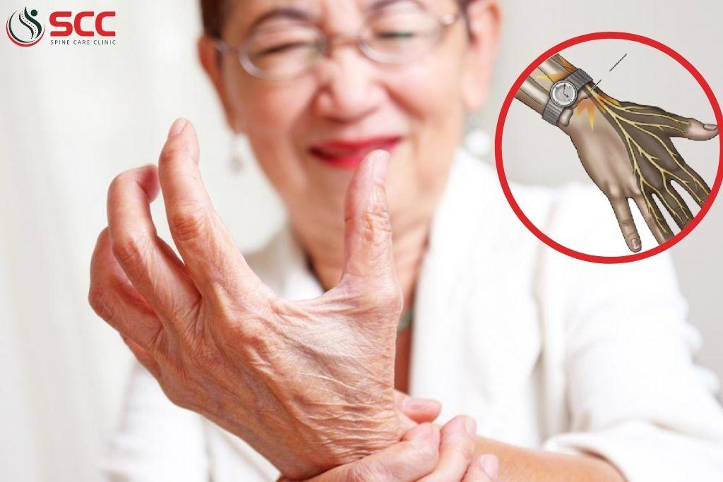 dấu hiệu, triệu chứng chứng đau bàn tay dị cảm