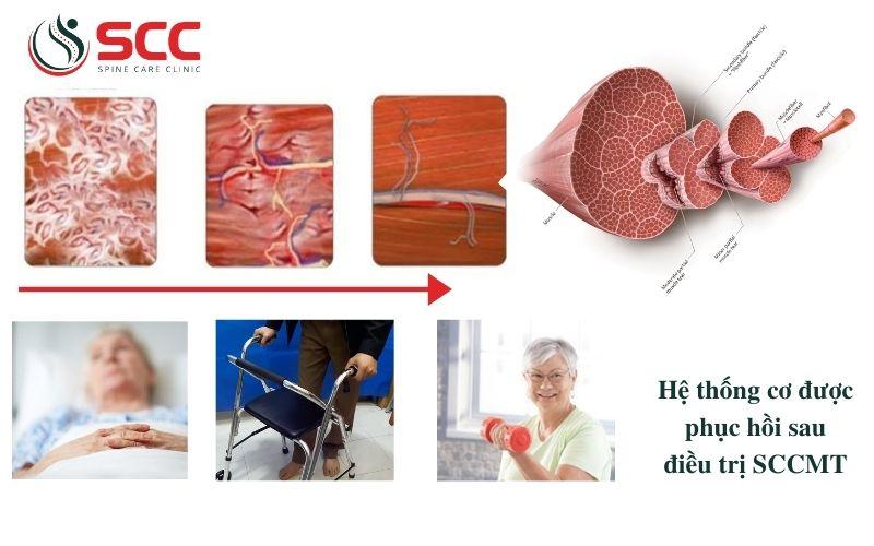 lợi ích của sccmt hay điều trị cơ scc