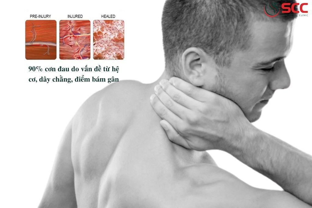 nguyên lý hoạt động của sccmt điều trị cơ scc