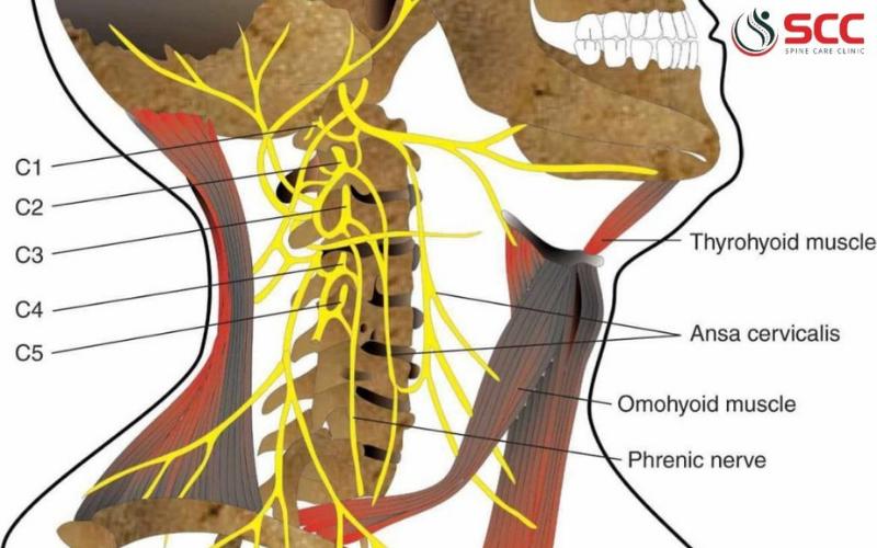 bệnh lý rễ thần kinh cổ