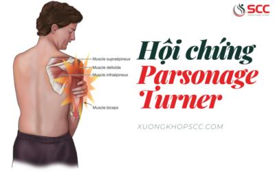 Chứng đau dị cảm bàn tay - Nguyên nhân, triệu chứng, cách điều trị