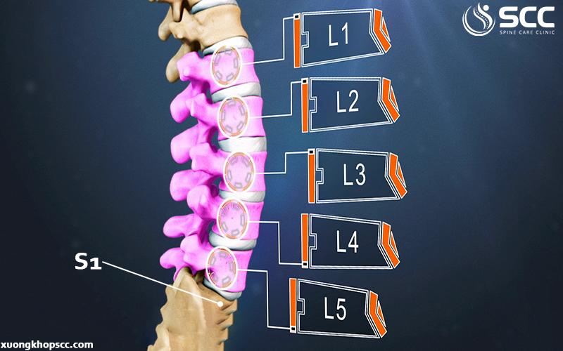 trị thoái hóa L1 L2 L3 L4 L5 S1