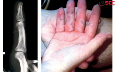 Dấu hiệu, triệu chứng và cách điều trị u nang hoạt dịch cổ tay