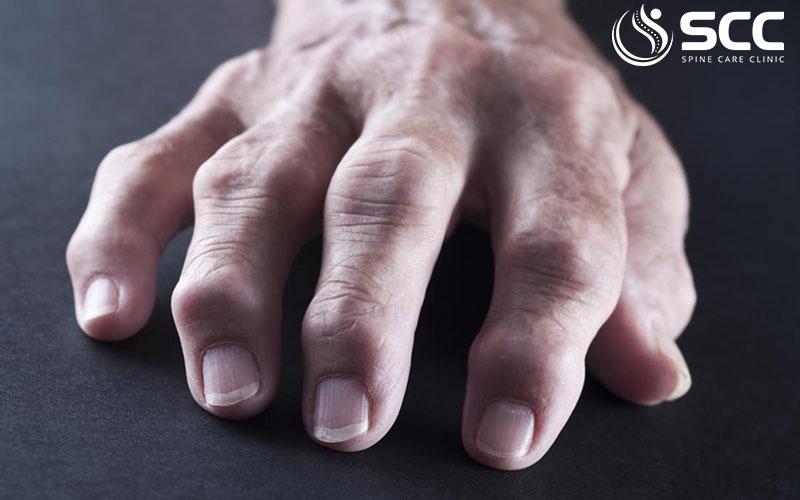loại thoái hóa khớp ngón tay