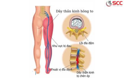 Dấu hiệu, triệu chứng và cách điều trị đau dây thần kinh chậu bẹn