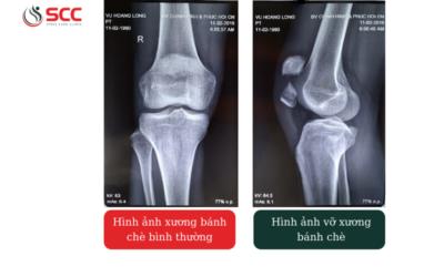 Viêm gân khớp gối - Dấu hiệu, triệu chứng, cách điều trị tại SCC
